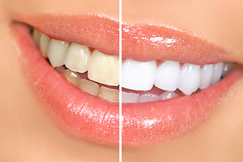 teeth whitening in fort wayne indiana